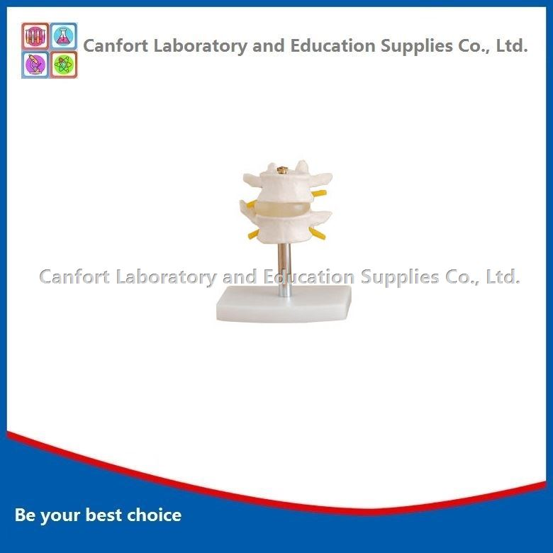 Natural size Vertebra model(2 pcs)